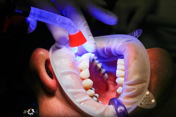 chirurgia szczękowa